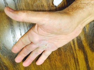 Dr. Rubinraut - hand condition after Kolagenaz injection