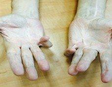דופיטרן: טיפול ללא ניתוח (Xiapex) - ד״ר אסתר רובינראוט מומחית כף יד