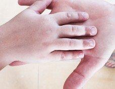 טיפול בפציעות ועיוותי כף יד בילדים - ד״ר אסתר רובינראוט מומחית כף יד