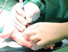 ניתוחי כף יד ושורש כף היד - ד״ר אסתר רובינראוט מנתחת כף יד